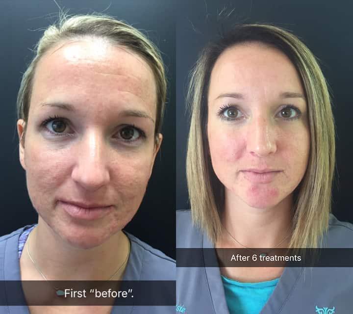 PRP Facials at origin dental