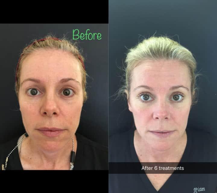PRP Facials at origin dental wellness