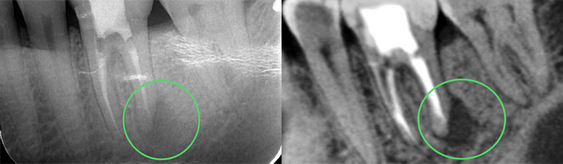 Cone Beam CT Scan vs. Traditional Dental Radiography