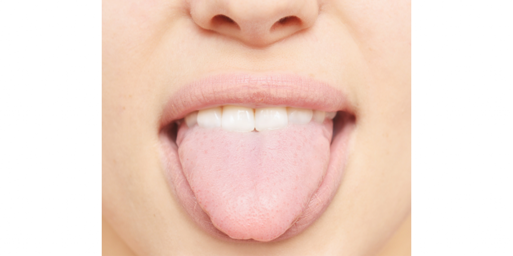 What Is Your Tongue Saying About You?